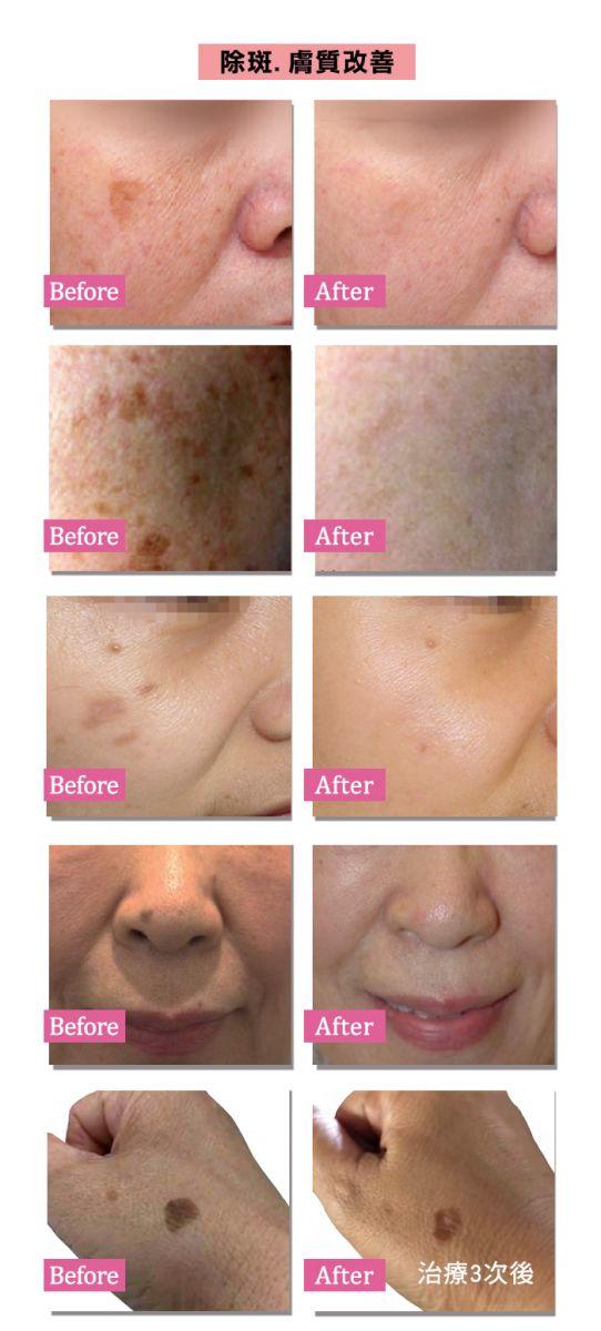 探索皮秒 除斑膚質改善案例照片