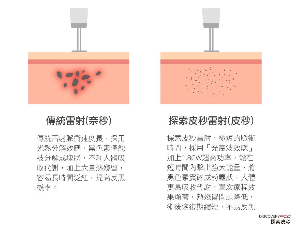傳統雷射與皮秒雷射比較