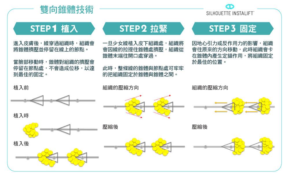 塑立愛立提線_雙向錐體技術
