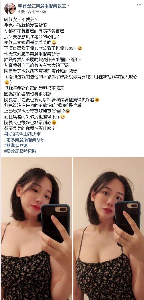 飯糰媽 小律FB  玻尿酸 豐唇