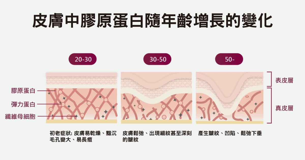 皮膚中膠原蛋白隨年齡增長的變化