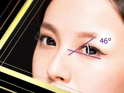 雙眼帘手術