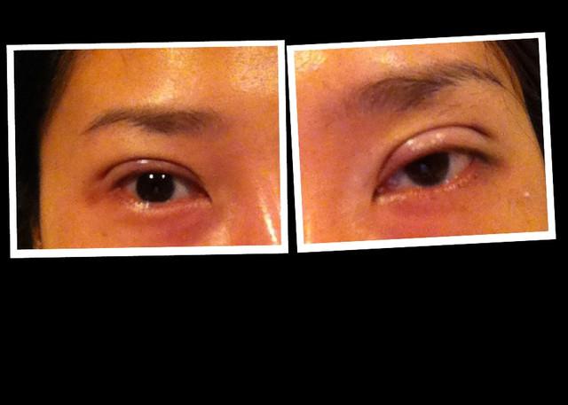 雙眼帘 腫脹 第一天